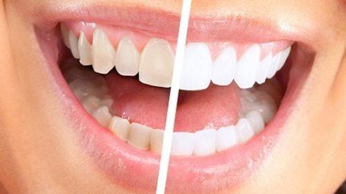 Cum sa-ti ingrijesti dintii dupa un tratament de albire la cabinetul stomatologic
